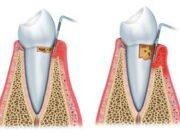 detartraj-dentar-artimplant